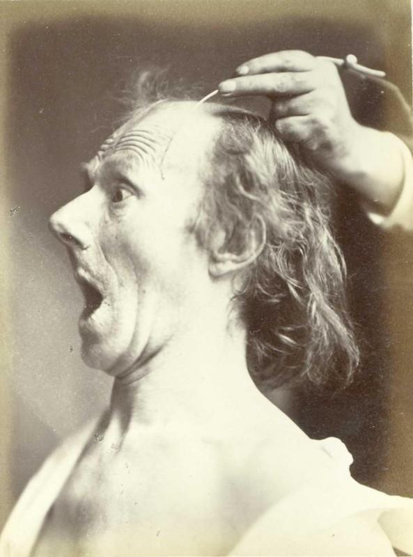 expression-visage-electricite-Duchenne-Boulogne-07-593x800
