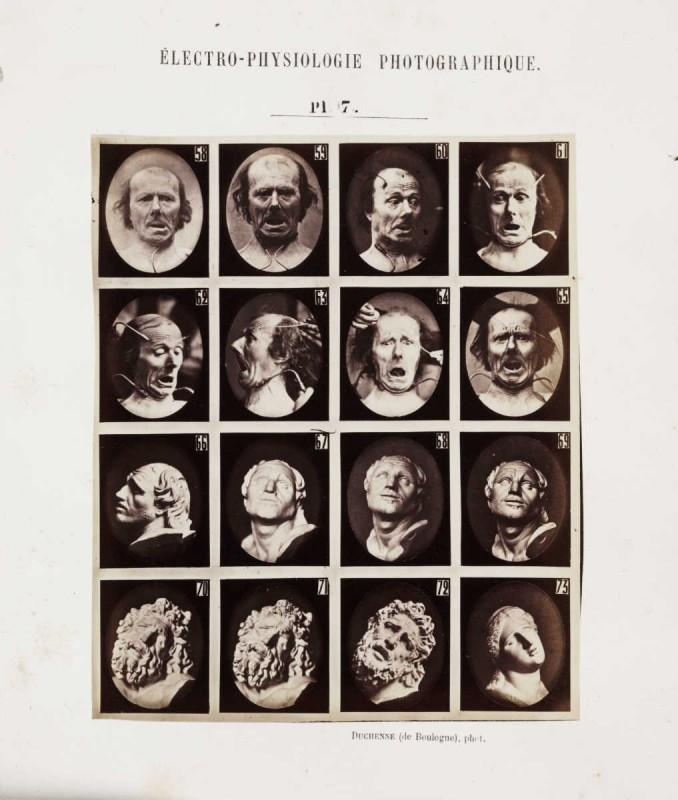 expression-visage-electricite-Duchenne-Boulogne-11-678x800